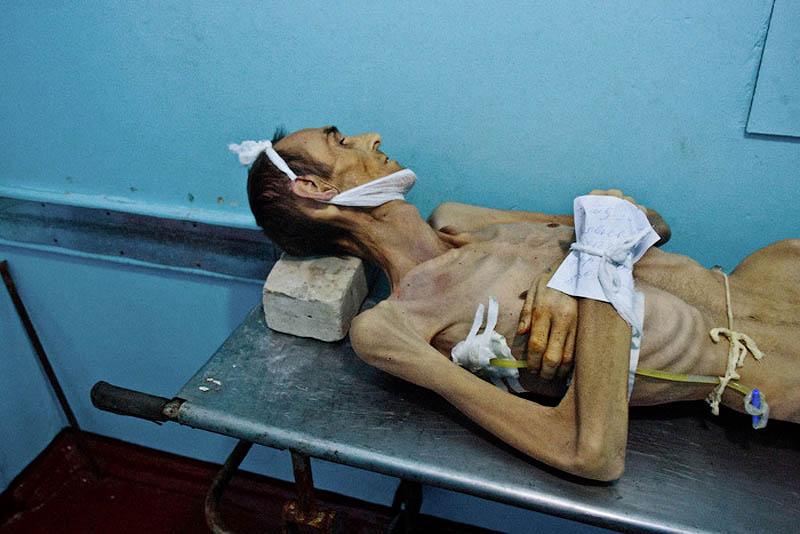 Почему туберкулез распространен в тюрьмах